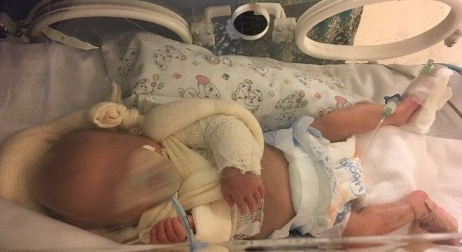 Menina nasceu prematura e segue internada em hospital