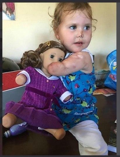 Uma menina de três anos deu seus primeiros passos com próteses e um andador após a perda de suas pernas e braços por causa de uma meningite