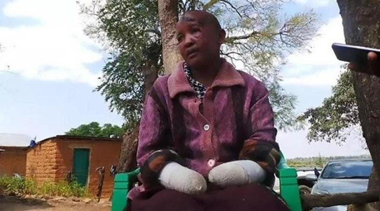 Uma esposa que acusa o marido de ter cortada as mãos dela por ela não poder ter filhos está prestes a ter um bebê.Jackline Mwende foi agredida por Stephen Ngila, que usou um facão para cortar os braços dela abaixo dos cotovelos e a deixou para morrer em julho do ano passado