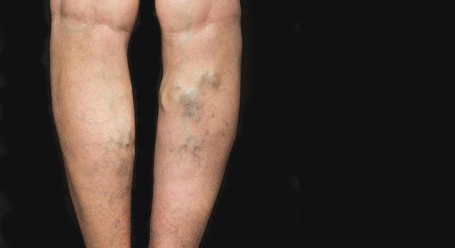 este posibil pentru varicoză cum de a alege un ciorapi de la varicoză