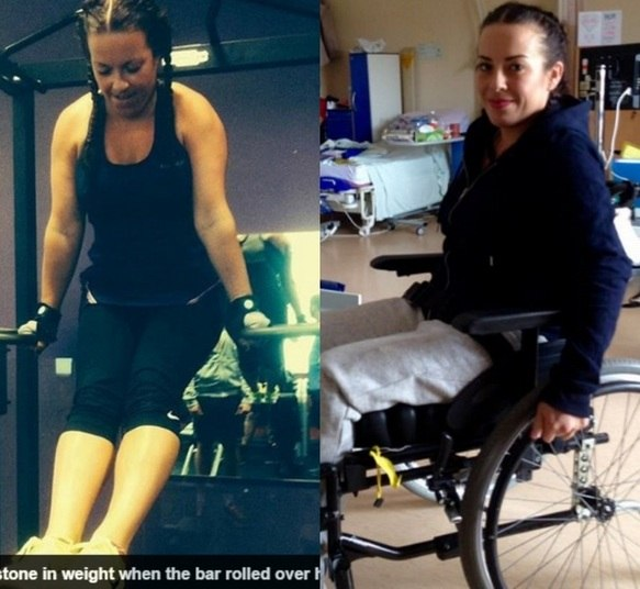 Uma mulher de 31 anos ficou paraplégica após fazer exercício de agachamento com peso na academia. Victoria Griffiths carregava 130 kg (o dobro do seu peso ccorporal) quando escorregou e caiu para a frente. Suas costas estalaram e 'dobraram ao meio'. As informações são do jornal Daily Mail
