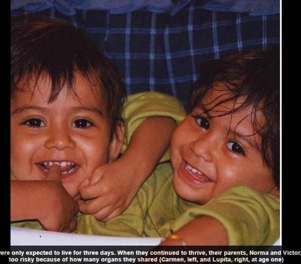 Lupita e Carmen Andrade, 16 tinham três dias de expectativa de vida. Muitos gêmeos siameses morrem logo após o parto, mas as meninas desafiaram as probabilidades e continuaram a viver