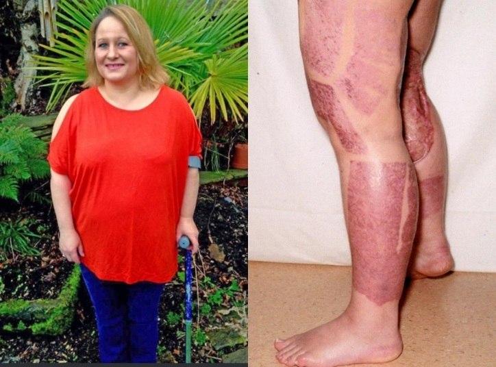 """Dana Sedgewick, de 44 anos, quase morreu depois de adquirir uma infecção por """"bactéria comedora de carne"""" após raspar a virilha com uma lâmina. A mulher chegou a entrar em coma por nove dias e passou por 21 cirurgias. As informações são do jornal The Sun"""