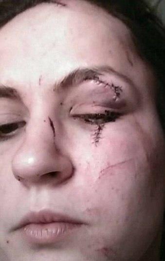 No momento da tentativa de agressão,Fayes, Gates e a namorada estavam em um bar e os três bebiam