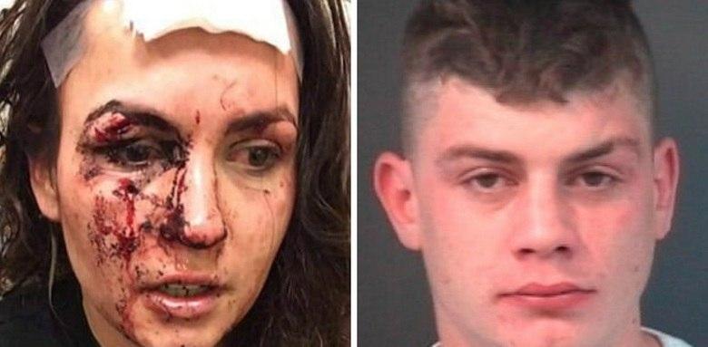 Uma jovem chamadaFaye Sharp, de 24 anos, ficou um vários ferimentos graves no rosto após impedir que um jovem agredisse a própria namorada na cidade de Emsworth, em Hampshire (EUA).Ao ver que a namorada foi protegida, o agressor, identificado como Karl Gates, voltou toda a sua ira contraFaye e a golpeou várias vezes no rosto com uma caneca