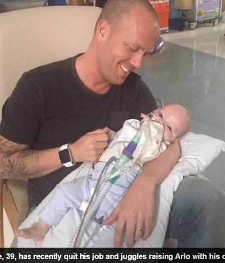 Os pais de Arlo, Mike, de 39 anos, e Chantal, de 36, de Londres (Inglaterra), nunca poderão levar o bebê para casa. Embora não haja cura para a doença, a luta de Arlo não o impede de continuar surpreendendo a família e os funcionários do hospital com suas gargalhadas e sorrisos, segundo Mike
