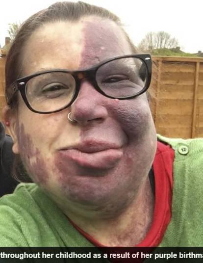 Uma mulher que cresceu recebendo apelidos maldosos devido à uma marca de nascença roxa, que cobre grande parte de seu corpo, superou todo o bullying que sofreu e diz que não mudaria nada em sua aparência. Sharon James, de 38 anos, de Watford, na Inglaterra, nasceu com a síndrome de Sturge-Weber, que é causada pelo excesso de vasos sanguíneos na superfície da pele. As informações são do jornal Daily Mail
