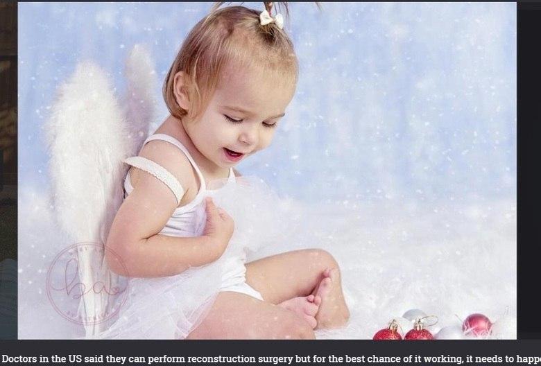 A única esperança dos pais é realizar um tratamento pioneiro, com três cirurgias, com um time de especialista nos Estados Unidos