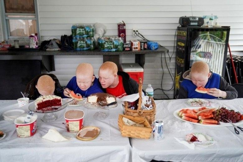 Elas receberam próteses que facilitam atividades como desenhar, usar o computador e até lavar as roupas, pendurá-las ou preparar as refeições. Sua autonomia foi retomada, afirmam os médicos