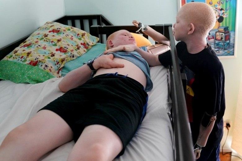 Após terem dedos, dentes, braços e outros membros mutilados, quatro crianças albinas da Tanzânia receberam próteses especiais nos Estados Unidos e voltaram à sua terra de origem com a auto-confiança recuperada