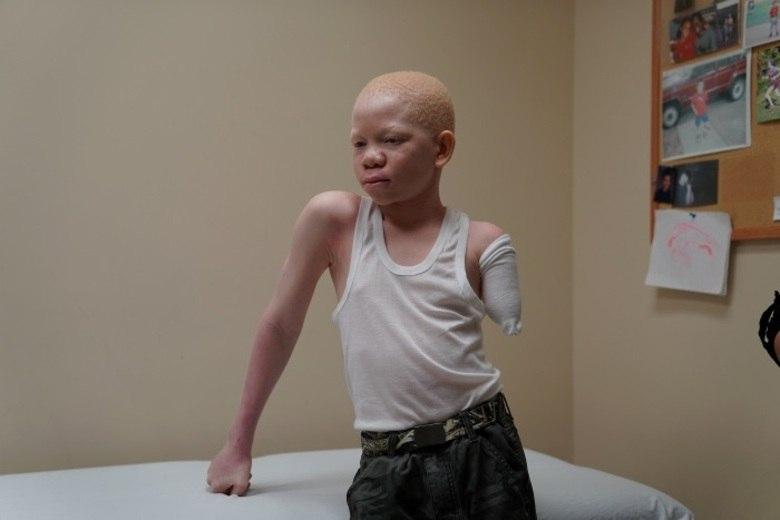 O albinismo é uma condição congênita caracterizada pela falta de pigmentação na pele, no cabelo e nos olhos. De acordo com a OMS (Organização Mundial da Saúde), 1 a cada 15 mil pessoas é afetada pela anomalia. Na Tanzânia, o índice aumenta para 1 a cada 1.400 indivíduos