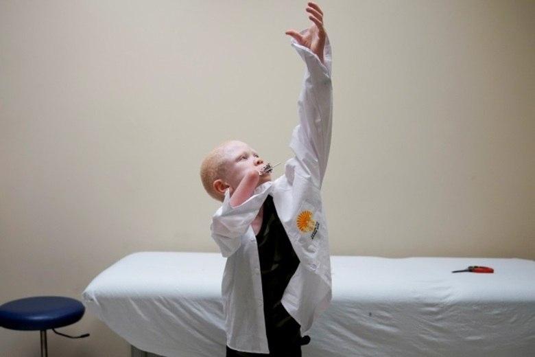 Na Tanzânia, partes do corpo de pessoas que sofrem com o albinismo são usados em poções e talismãs. Existe uma crença popular de que braços os pernas dos albinos podem curar doenças e trazer sorte e prosperidade. Além disso, acredita-se que os albinos são fantasmas que propagam o azar