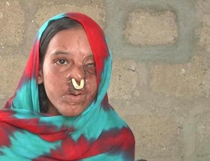 Uma mulher paquistanesa teve o rosto desfigurado por um ataque com ácido após ter recusado o pedido de casamento de um homem de 22 anos. A jovemSidra Kanwal não aceitou a proposta porque ela precisaria viver somente com o marido e seria afastada da família