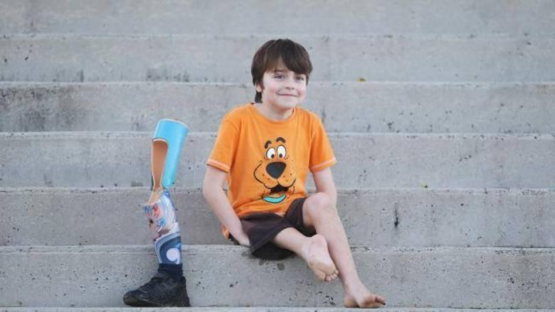 Cirurgiões transplantaram os pés de um menino australiano de trás para frente depois que ele foi diagnosticado com um raro tipo de câncer