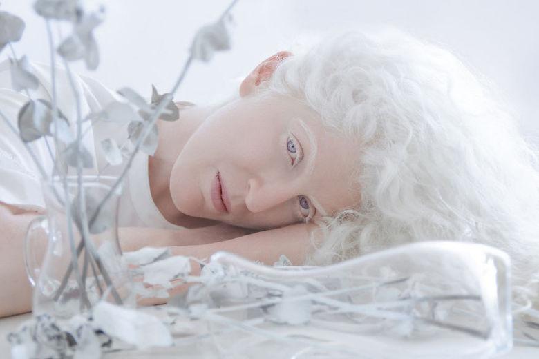 — Eu tive muito retorno das pessoas, muitas delas com albinismo. Elas diziam que o meu projeto é muito poderoso e ele fazia com que elas se sentissem mais bonitas e confiantes do jeito que elas eram