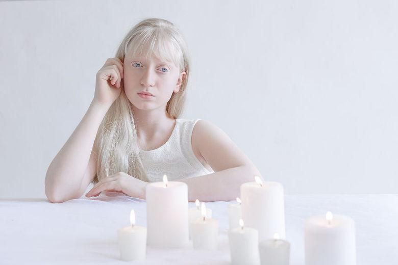 Essa é a segunda vez que Yulia divulga as fotos que faz com modelos albinos e o novo ensaio, de acordo com fotógrafa, foi feito por conta do sucesso que o trabalho teve em sua primeira versão, lançado em novembro do ano passado