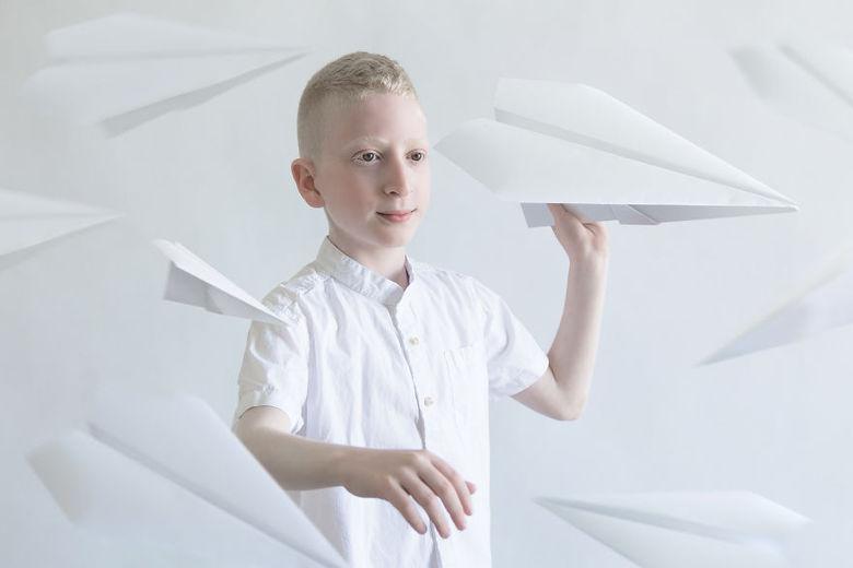 Outra das crenças é que os braços e pernas dos albinos podem curar doenças e trazer sorte e prosperidade
