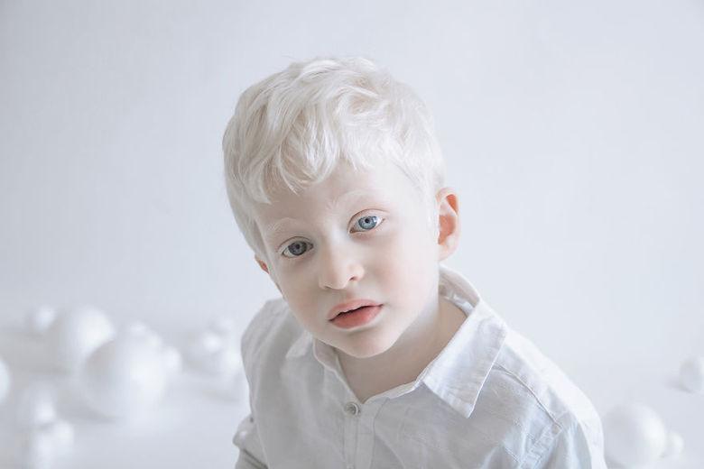 Em várias regiões do mundo existem dezenas tradições e rituais místicos realizados com albinos