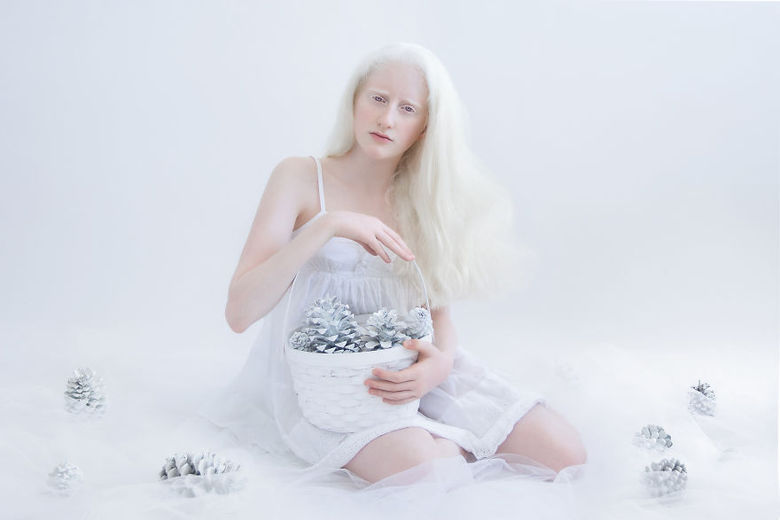 Segundo a ONU (Organização das Nações Unidas), pelo menos 75 albinos foram assassinados na Tanzânia em decorrência das crenças populares entre os anos de 2000 e 2015