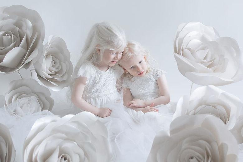 O albinismo é uma condição congênita caracterizada pela falta de pigmentação na pele, no cabelo e nos olhos