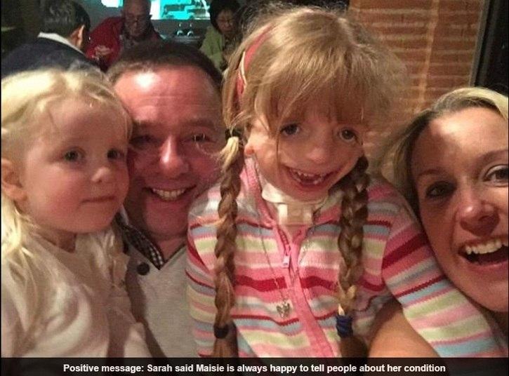 """Apesar de Maisie não se importar com a doença, Sarah admite que está preocupada com o bullying e com a vida social da garota.    — Embora muitos aspectos da doença sejam corrigíveis ao longo do tempo, e a aparência possa ser suavizada, fico preocupada com a autoestima de Maisie. Ela pode ter que se esforçar para ser feliz. Maisie está ajudando a aumentar a conscientização sobre a doença na instituição britânica de caridade infantil """"Genetics Disorders UK"""""""