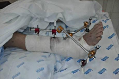 Perna direita da criança atropelada por GCM após a primeira cirurgia