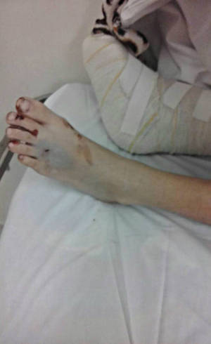 Menina atropelada fraturou a tíbia da perna direita e teve lesões no pé esquerdo