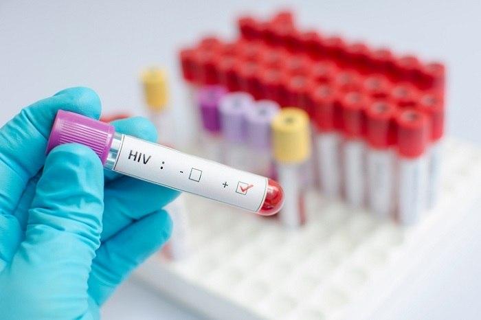 Aumentam casos de resistência do HIV a remédios
