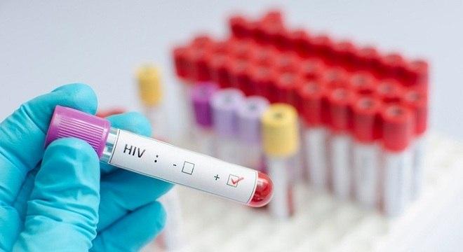 Tratamento com antirretrovirais é combinado com duas substâncias e uma vacina
