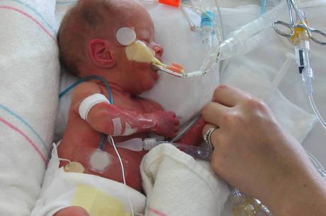Leite materno ajuda o prematuro a se desenvolver
