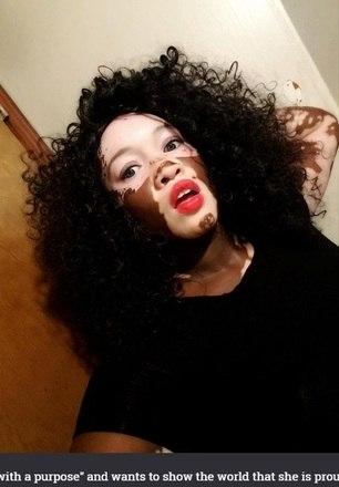 Iomikoe Johnson de Louisiana, nos Estados Unidos, sofre de vitiligo, uma doença em que ocorre a perda da pigmentação natural da pele. A modelo tentou se suicidar e ficava horas passando maquiagem para cobrir as manchas da pele. Hoje,  Iomikoe é modelo e já aceitou sua condição. As informações são do jornal britânico The Sun