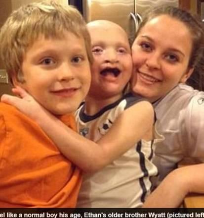 O menino também precisa usar dentaduras. Aos nove anos, Ethan já passou por 29 cirurgias diferentes. O último procedimento foi realizado nos olhos porque ele corria o risco de ficar cego. Antes da cirurgia, ele estava totalmente cedo do olho direito e havia perdido 55% da visão do olho esquerdo