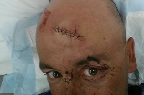 Capitão Oliver Galea, 44 anos, com um corte profundo na testa