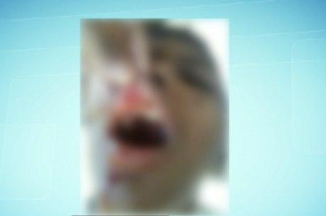 Mãe da criança contou que o filho apareceu em casa com um dente quebrado