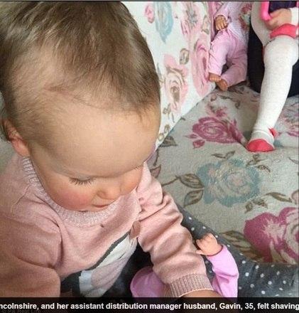Ela ainda não foi diagnosticada por nenhum médico, mas a mãe acredita que ela sofra de tricotilomania — compulsão por arrancar os cabelos
