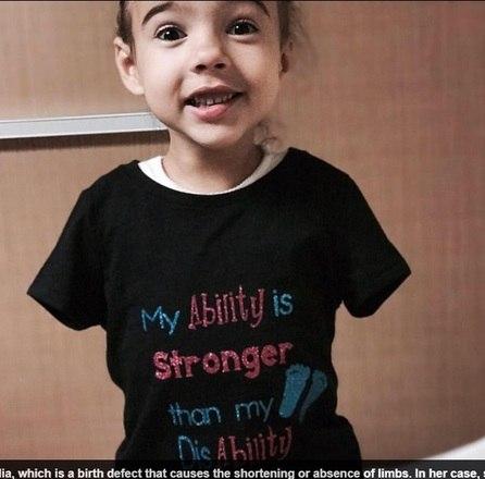 Uma menina de cinco anos, que nasceu sem os dois braços, desafiou as probabilidades e aprendeu a andar de bicicleta com a ajuda de um equipamento. As informações são do jornal britânico Daily Mail