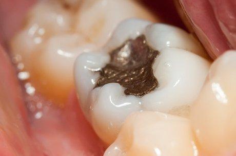 Os enchimentos podem precisar ser substituídos durante a vida útil do dente