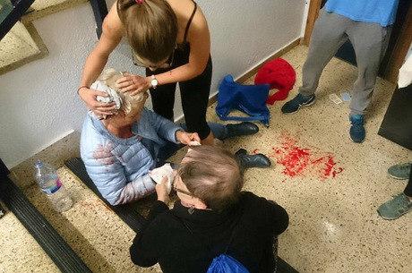 Senhora é atendida após ter sido ferida na cabeça