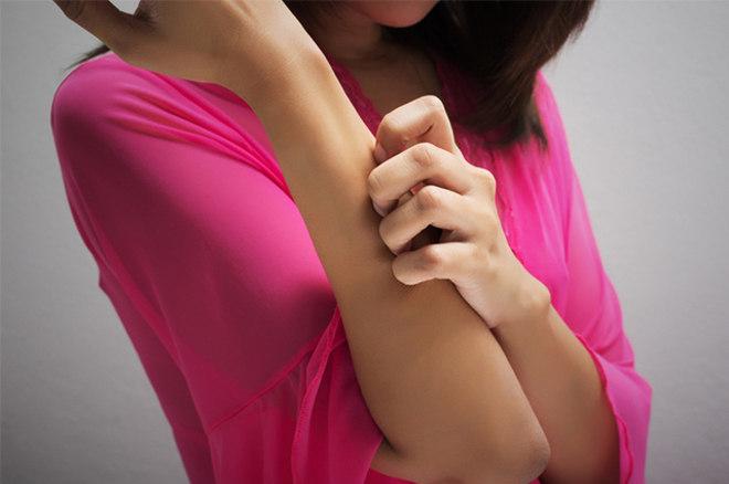 Como resposta a essas substâncias inflamatórias, os vasos sanguíneos da pele se dilatam, permitindo a infiltração de células de defesa, chamadas neutrófilos. Como as células da pele estão sendo atacadas pelo próprio corpo, sua produção cresce, evoluindo mais rapidamente. Com essa rapidez, a pele apresenta escamação devido à imaturidade das células. A impossibilidade de eliminação das células mortas resulta em manchas espessas e escamosas