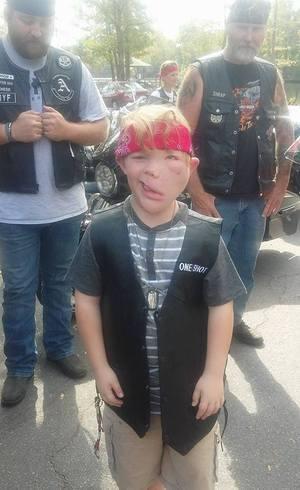 Alex Bruorton sofre muito bullying na escola por ter síndrome de Clovis