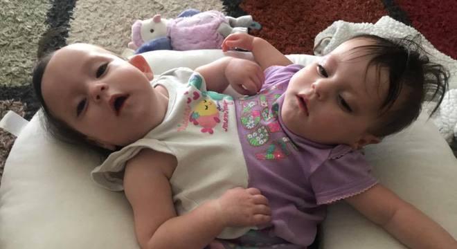 Com a ajuda do equipamento, as gêmeas vão ser mais independentes