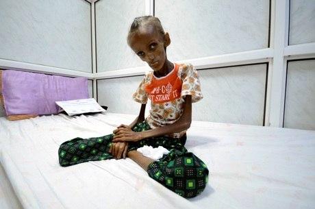 Saida Baghili se trata em um hospital do Iêmen, em 2016