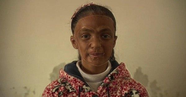 'Quero voltar a ser bonita': o drama das irmãs que tiveram rostos queimados na guerra da Síria