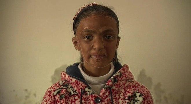 """Qamar quer ser médica e """"ajudar os pacientes a ficarem mais bonitos que antes"""""""