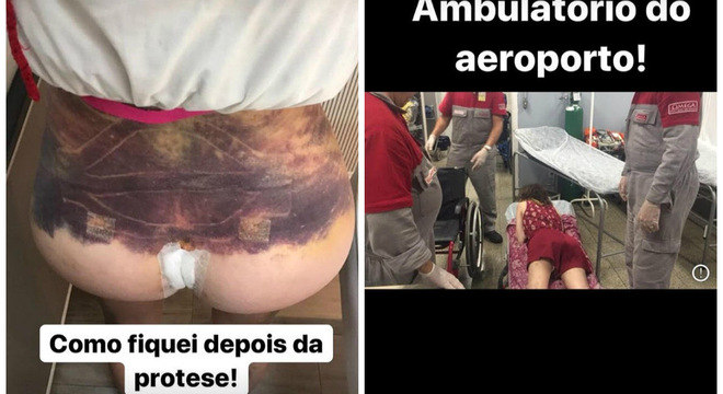 Camilla mostrou hematomas e sua chegada ao hospital