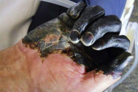Peste bubônica afeta os nódulos linfáticos