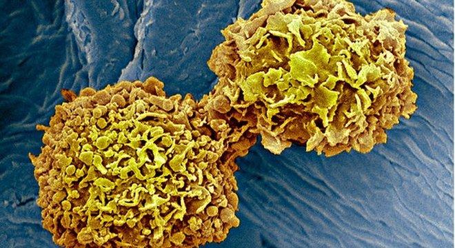 Método detecta, a partir do exame de sangue, oito tipos de proteínas e 16 mutações genéticas comuns em quem já foi diagnosticado com câncer