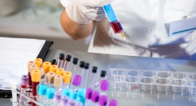 R$ 1,6 mil é o preço do exame que detectou os oito tipo de câncer