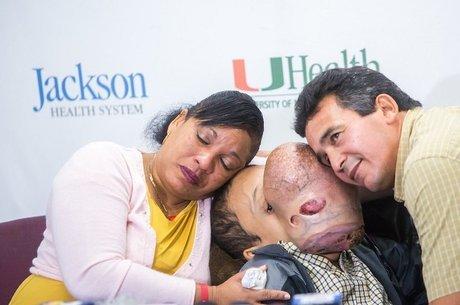 Emanuel tinha rara condição genética que provocava formação de tumores