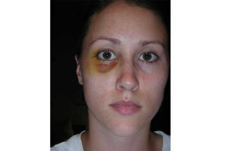 Colbie Holderness com o olho roxo após levar soco do ex-marido